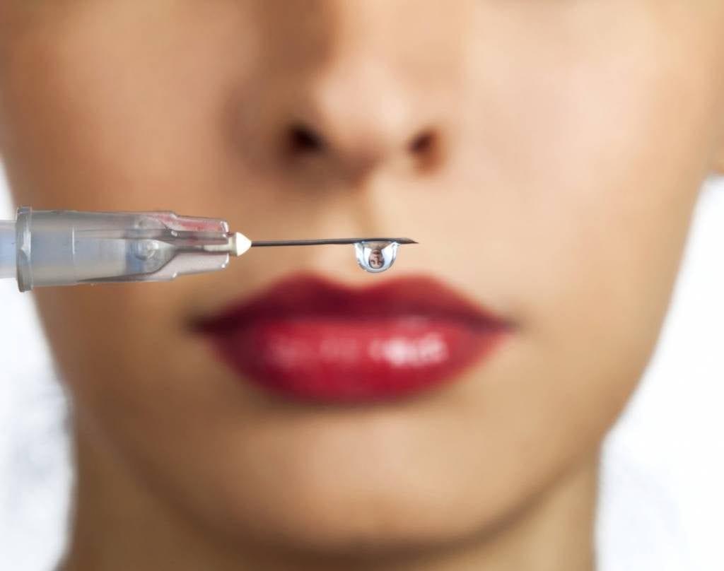 Preenchimento labial – O que é, como é feito, contraindicações, valores
