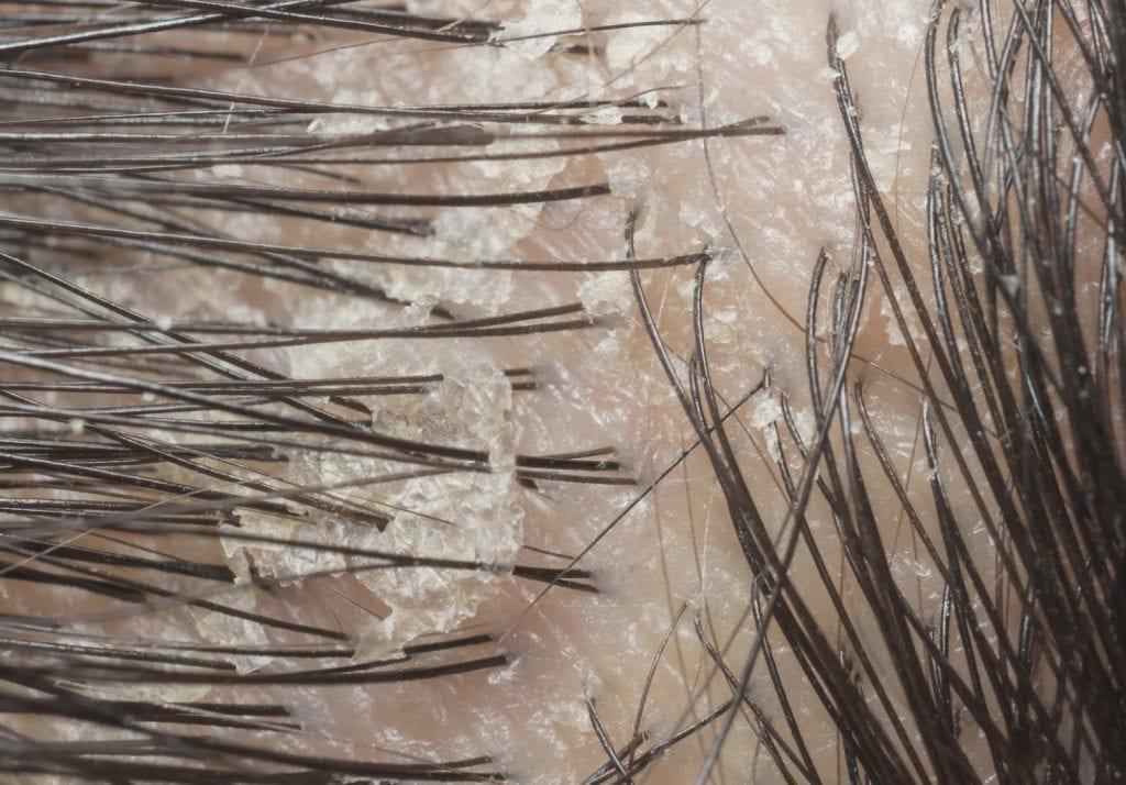 Caspa – O que causa, como se forma, como identificar e acabar com ela