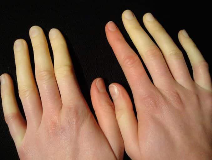 Doença de Raynaud atinge principalmente mulheres e frio demais pode ser sintoma