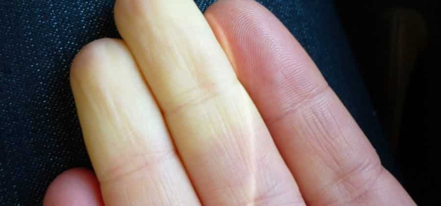 Doença de Raynaud - Sensibilidade demais ao frio pode ser grave sintoma