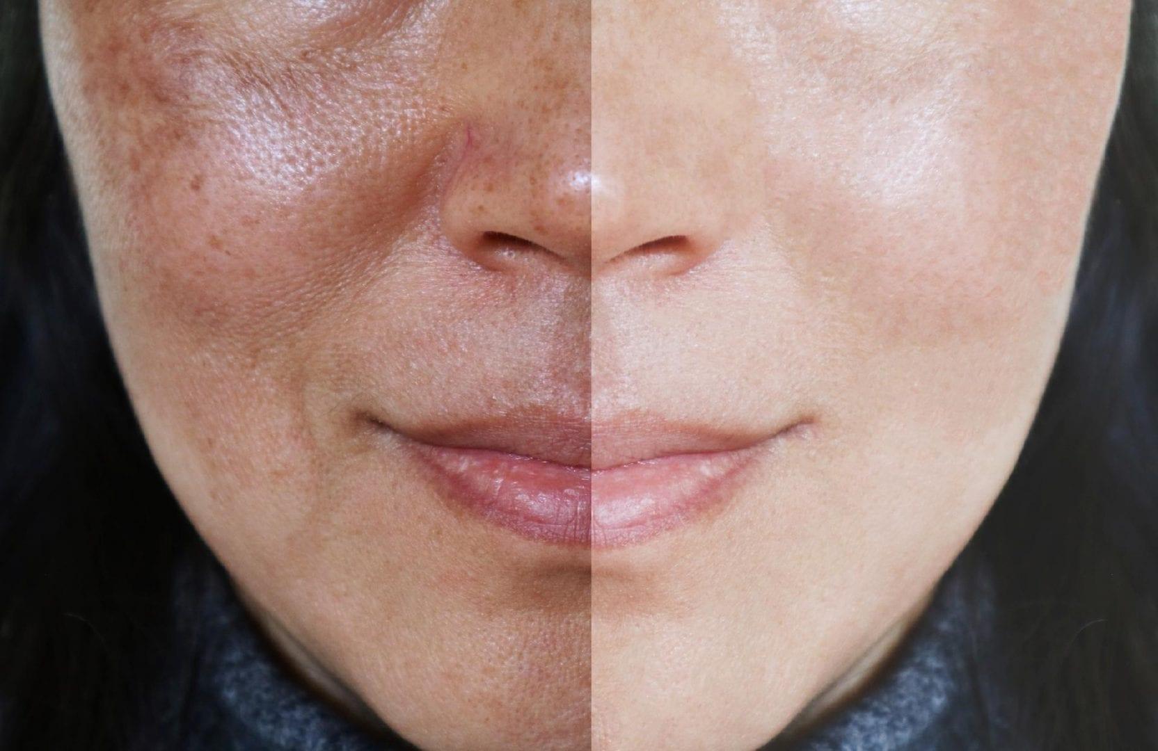 Peeling- O que é, tipos de peeling, cuidados e antes e depois
