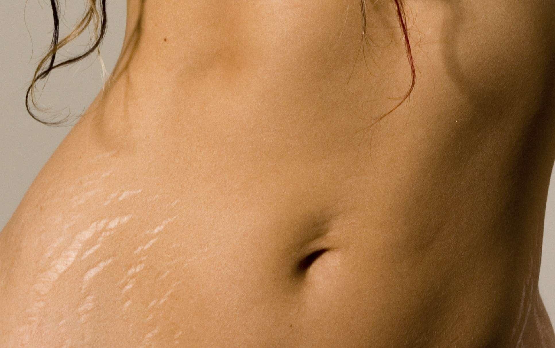 Sofre ou já sofreu com estrias na gravidez? Então chega mais