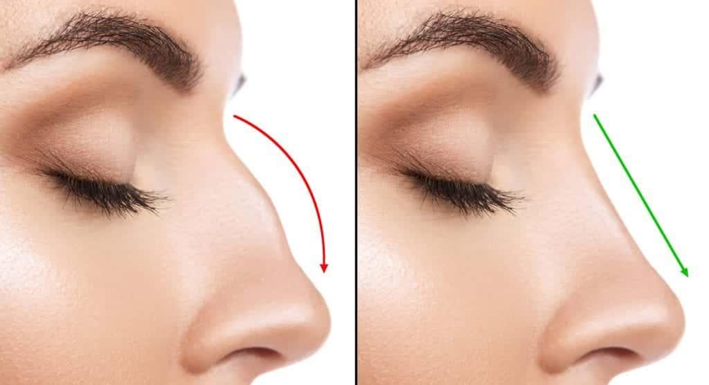 Como afinar o nariz sem cirurgia? Modeladores, maquiagem e truques