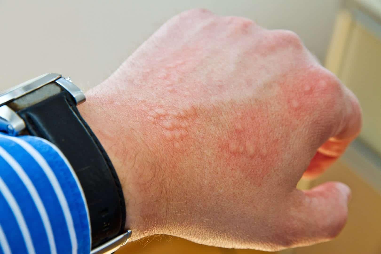 Confira agora as 10 doenças que podem causar mancha vermelha na pele