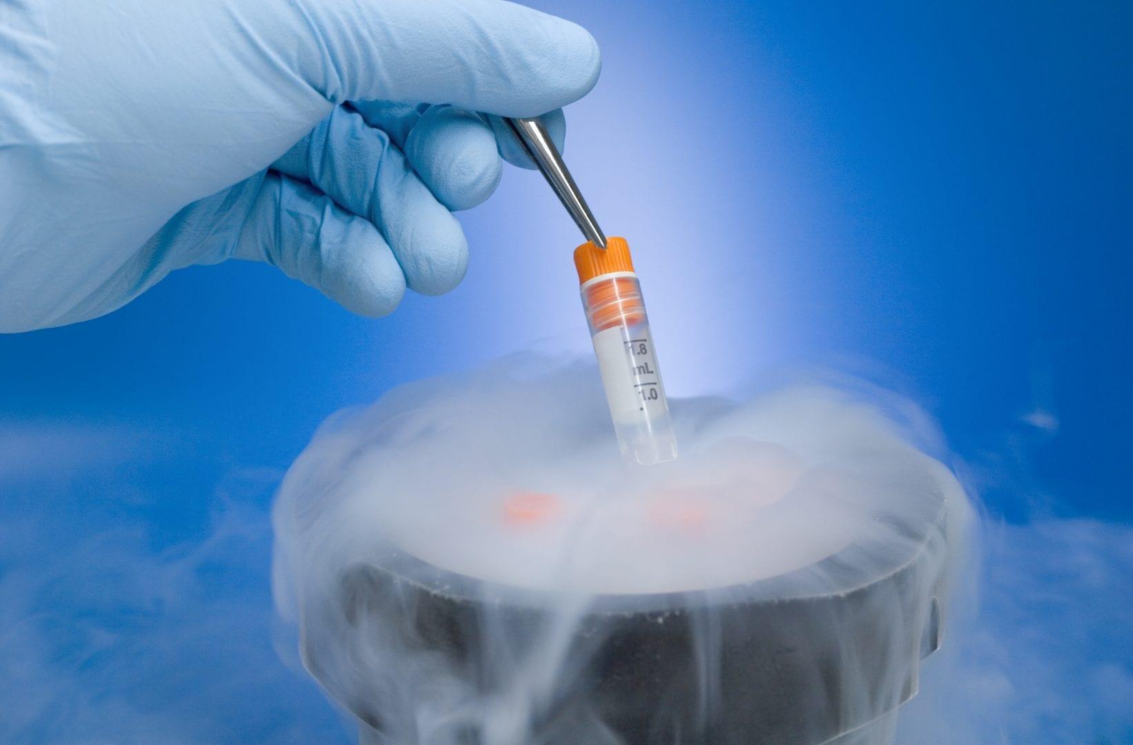 Congelamento de óvulos- Passo a passo do procedimento e quanto custa