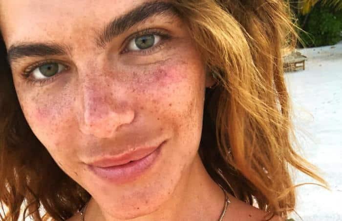 Problemas de pele - doenças que causam mancha na pele