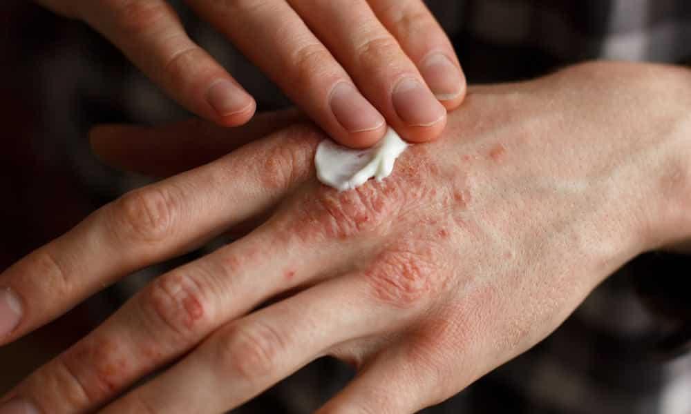 Problemas de pele - 7 doenças que causam mancha na pele
