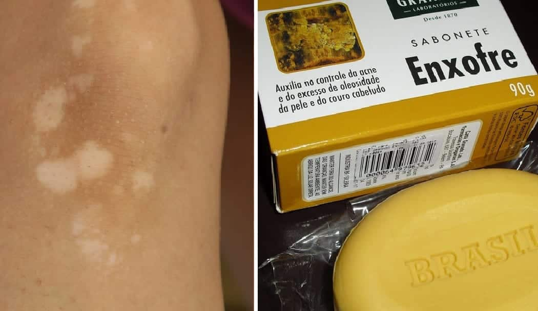 Sabonete de enxofre - Para que serve, como usar, benefícios e receita