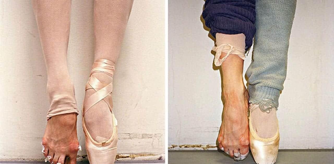 Confira a realidade dos pés de bailarina atrás do palco