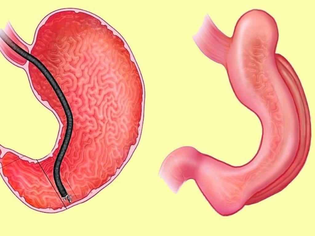 Gastroplastia - Conheça a forma mais moderna da cirurgia bariátrica