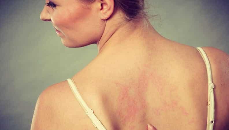 Pele sensível, o que é, quais são os sintomas e os tratamentos