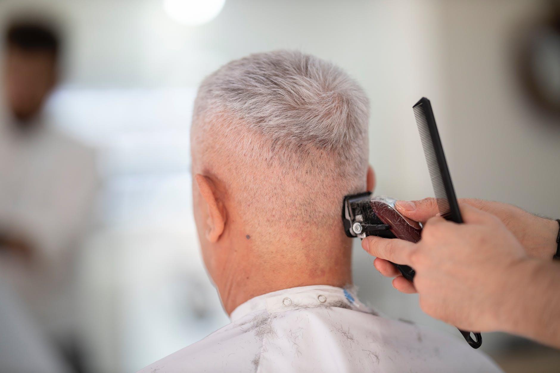 Alopecia areata é uma doença que provoca a queda de cabelo