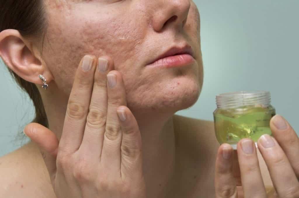 Babosa no rosto – Benefícios, dúvidas frequentes + 6 receitas caseiras