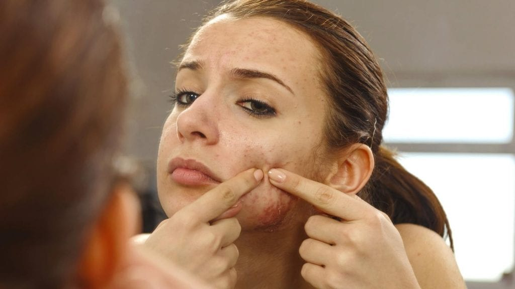 Anticoncepcional para acne – Como o remédio realmente funciona