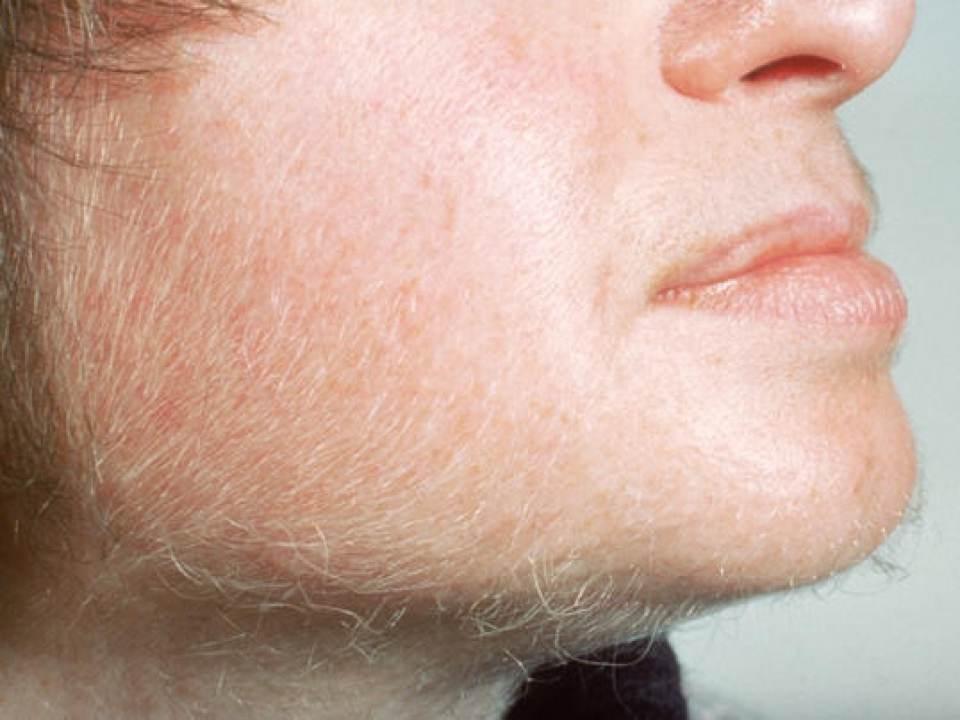 Hirsutismo, o que é, quais os sintomas como é feito o tratamento?