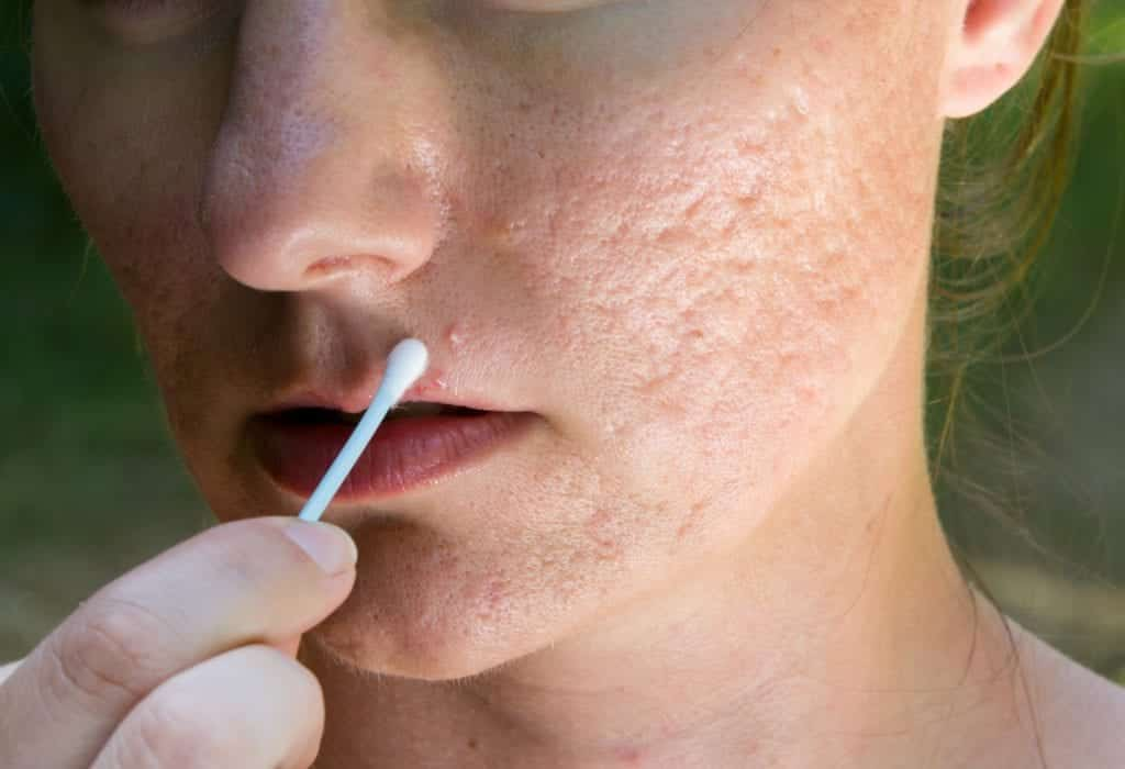Como secar espinha – 8 tratamentos caseiros eficazes