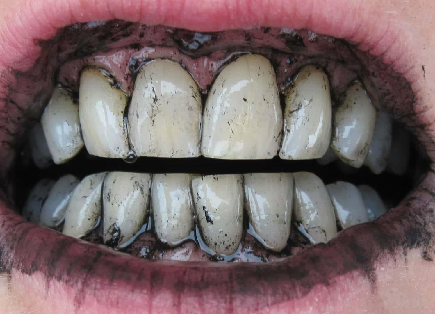Dentes brancos- principais tratamentos de consultório e também caseiros