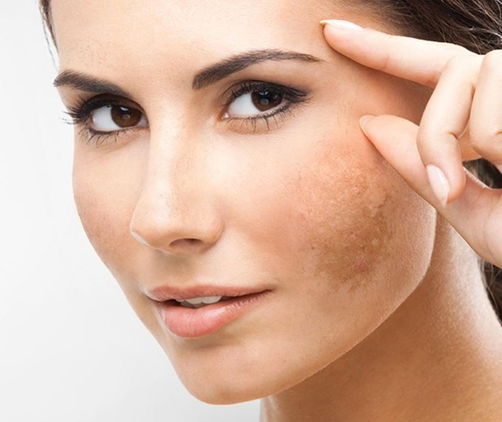 Manchas escuras na pele – O que são, tipos e tratamentos