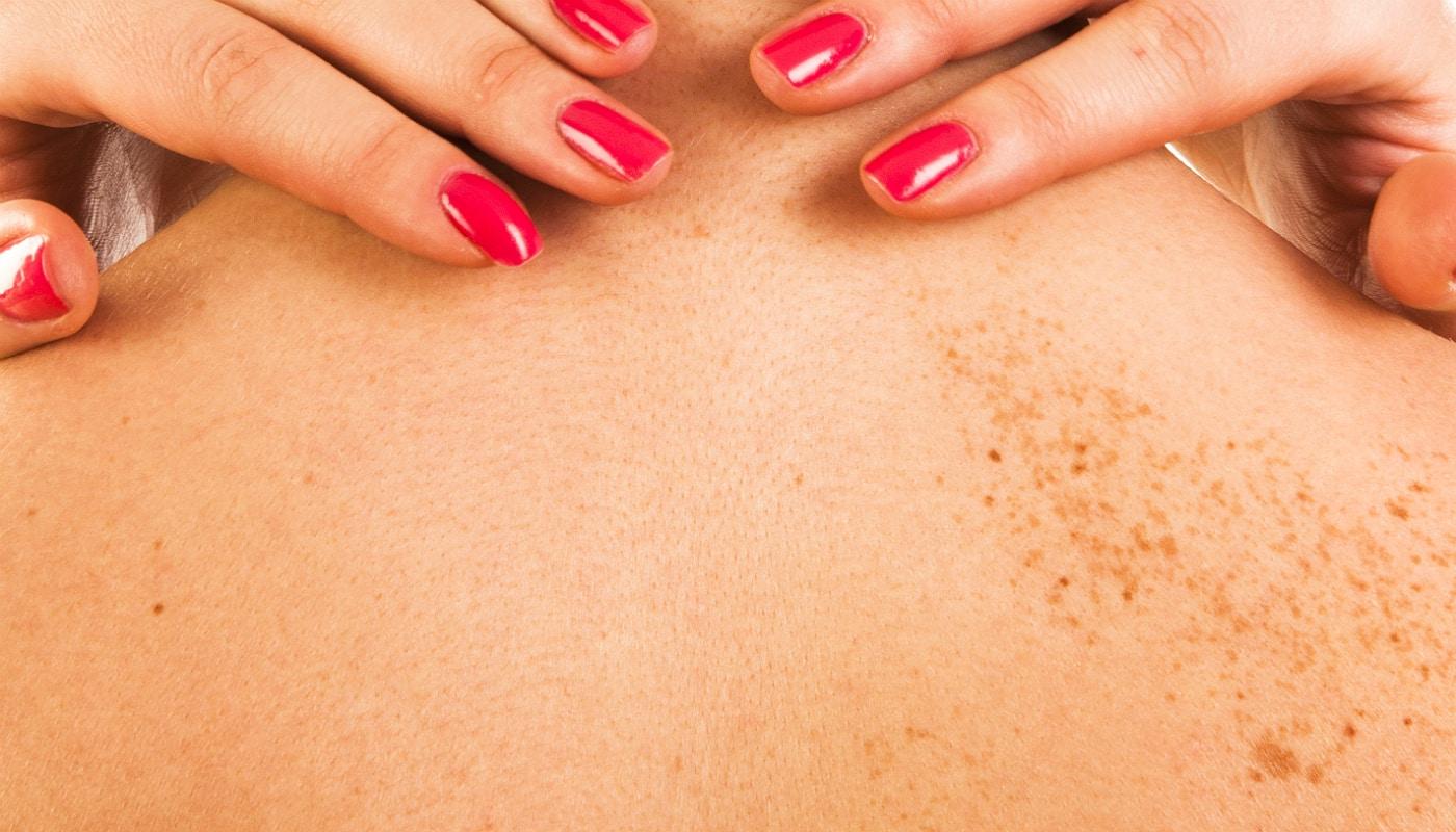 Manchas escuras na pele: O que é, tipos e tratamentos