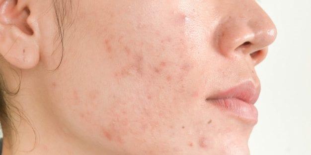 Tipos de pele - quais são, como identificar e cuidar
