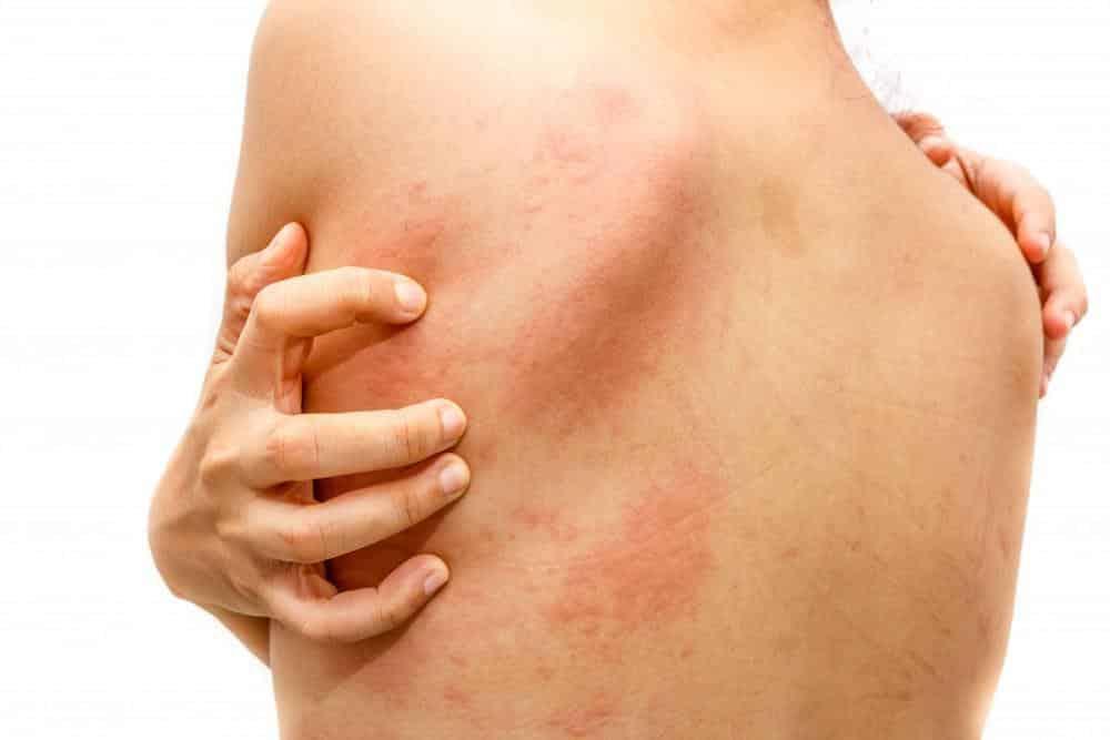 Dermatite – O que é, sintomas, tipos da doença e como tratar