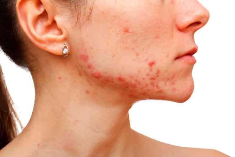Luz visível - o que é, o que causa na pele, como se proteger