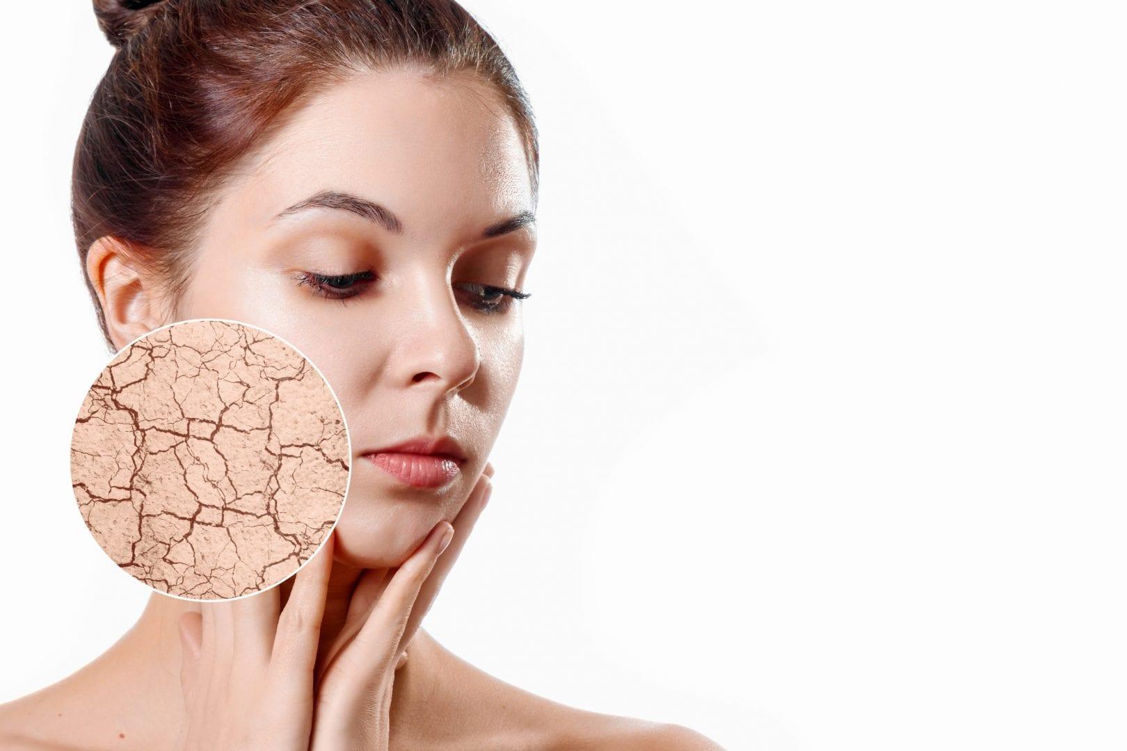 Pele seca – O que é, como identificar, sintomas e tratamento