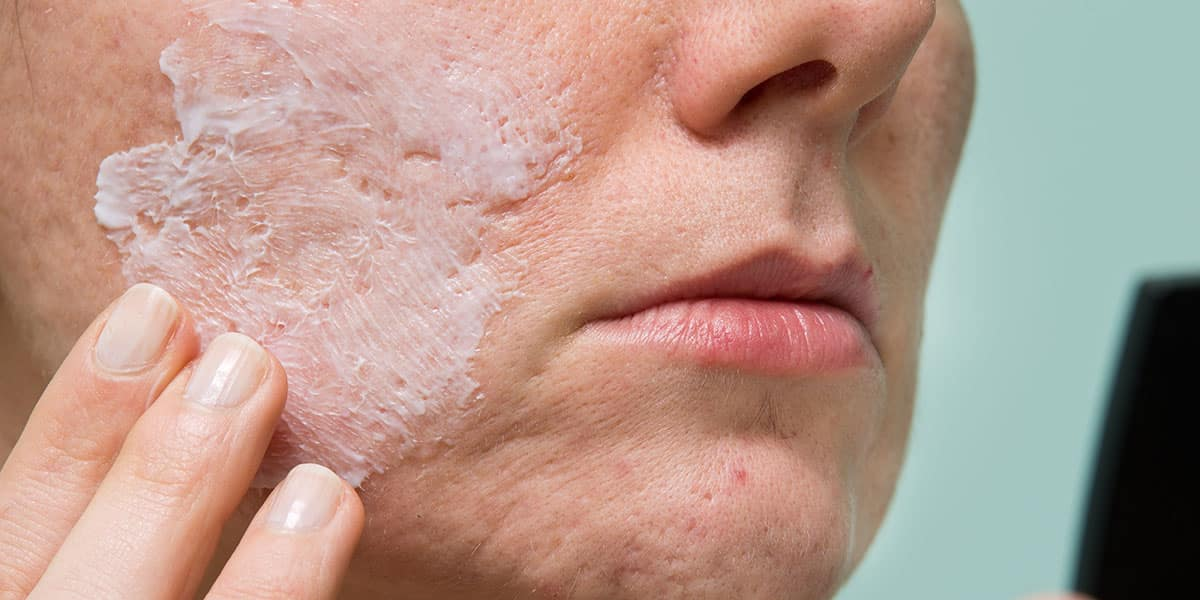 Acne solar - como acontece, consequências e cuidados necessários