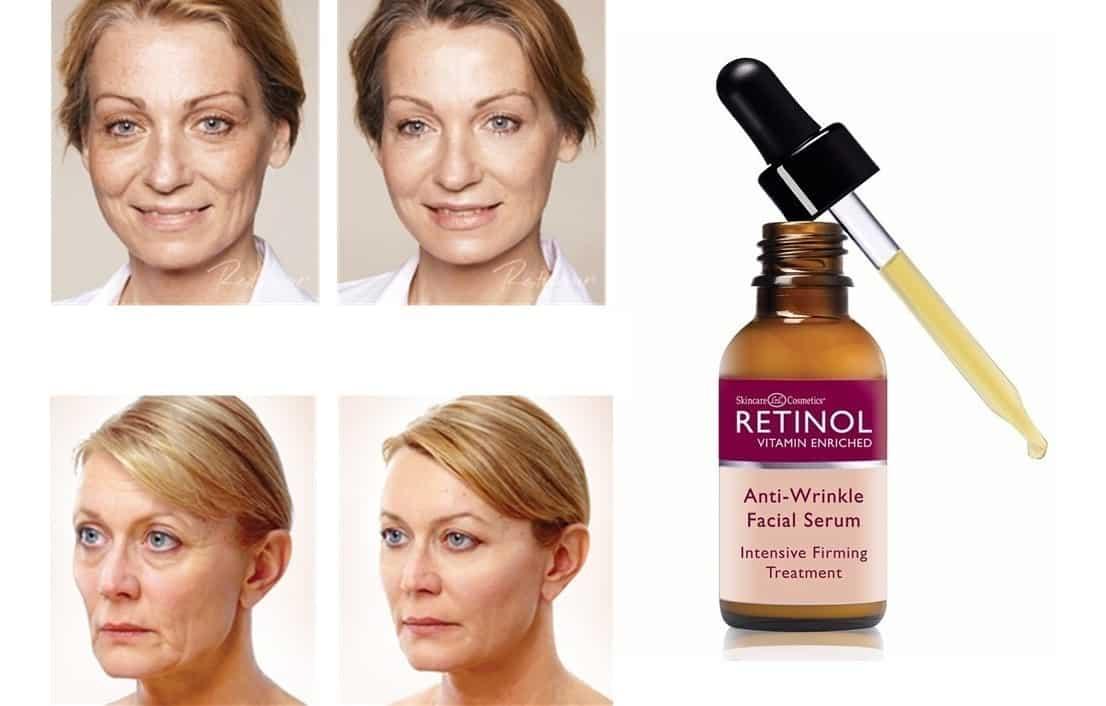 Retinol - o que é, para o que serve, como usar, melhores produtos