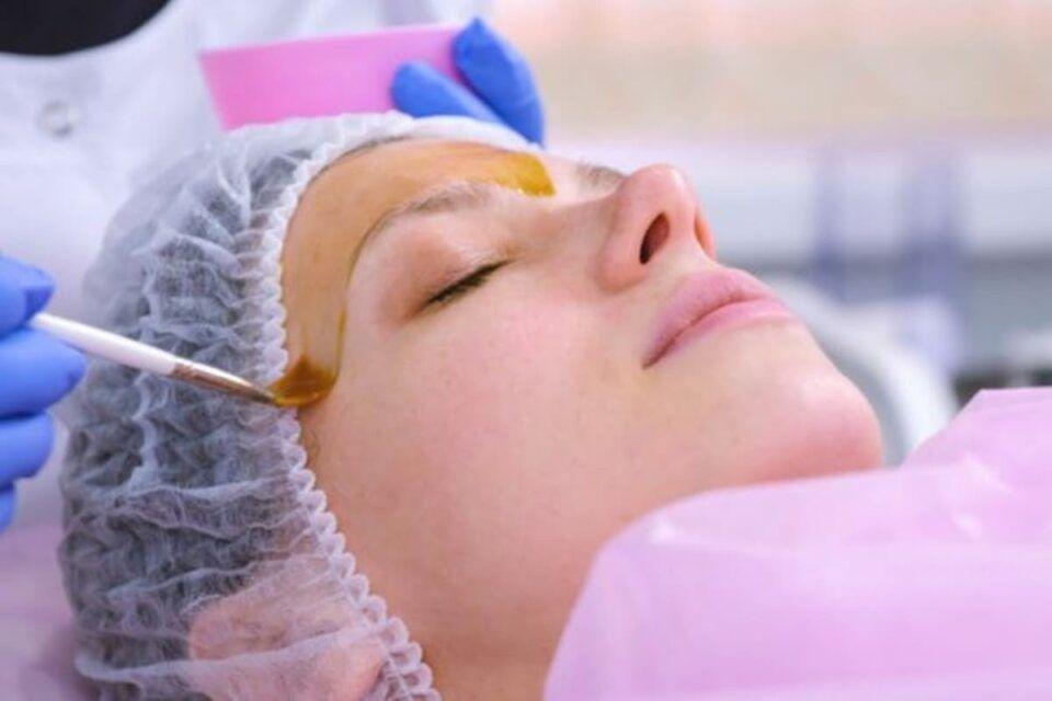 Peeling de fenol, o que é? Indicações, recuperação e cuidados