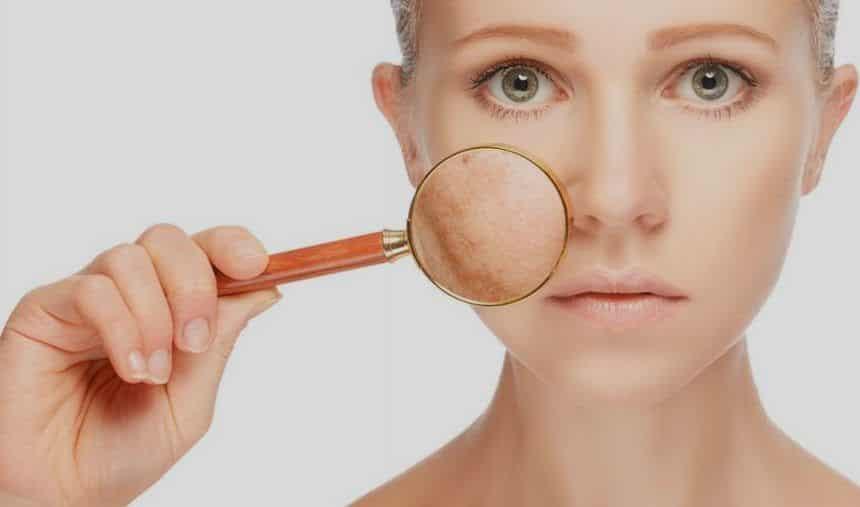 Pele manchada, o que é? Causas, prevenção e tratamentos