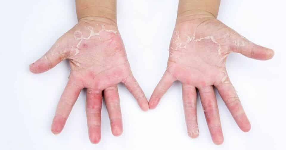 Alergia nas mãos – Possíveis causas, tipos, sintomas e tratamentos