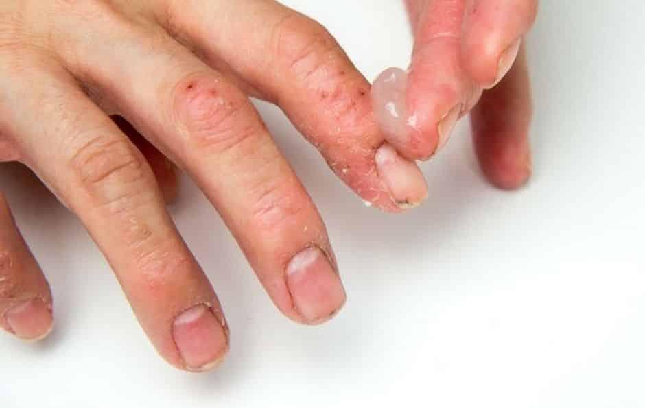 Alergia nas mãos - Possíveis causas, sintomas e tratamentos