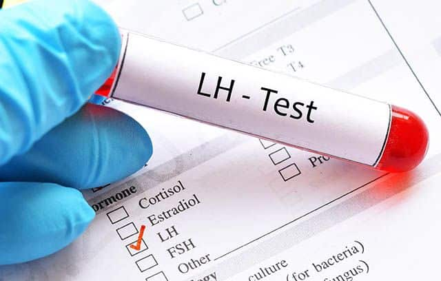 Teste LH - Evitar gravidez