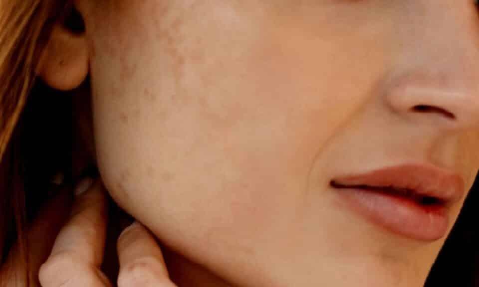 Manchas brancas na pele, o que são° Tipos e tratamentos