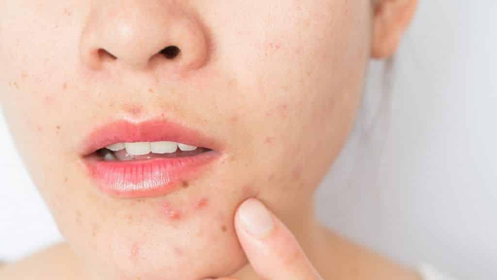 Doenças hormonais causam espinha