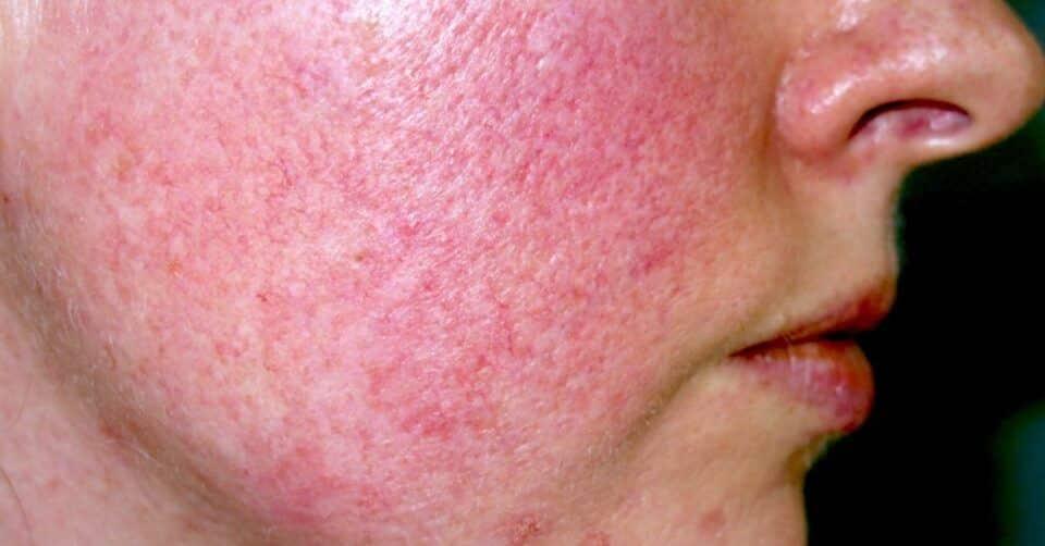 Vermelhidão no rosto – Causas, doenças e cuidados diários