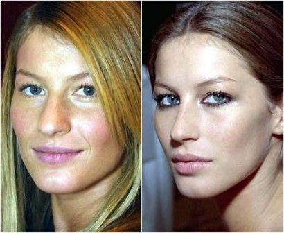 cirurgia cosmetica o que e principais procedimentos 5 - Cirugía estética, ¿que es?  Procedimientos principales