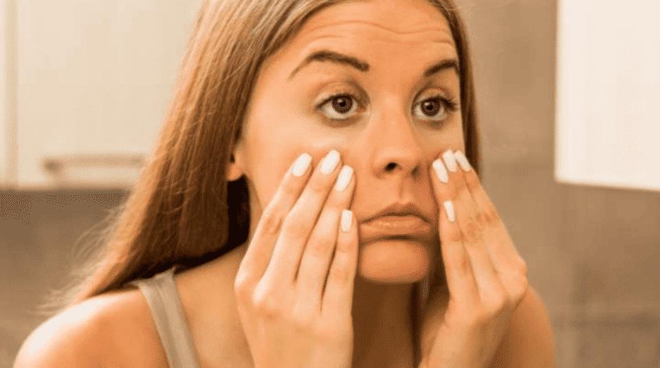Preenchimento de olheiras- rotina de cuidados+ tendências de tratamento