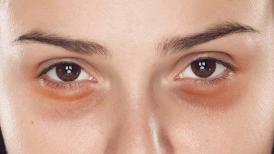Tipos de olheiras – Veja qual o seu tipo e como cuidar