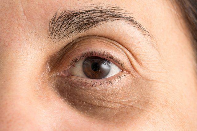 tipos de olheiras veja qual a sua e como cuidar 6 - Tipos de ojeras: vea cuál es su tipo y cómo cuidar