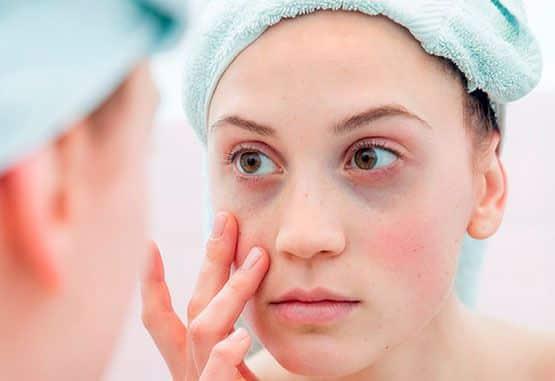 tipos de olheiras veja qual a sua e como cuidar 8 - Tipos de ojeras: vea cuál es su tipo y cómo cuidar