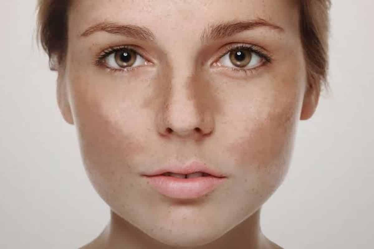 como tirar manchas do rosto ativos metodos caseiros e tratamentos 1 - Cómo eliminar las imperfecciones faciales: activos, métodos y tratamientos caseros