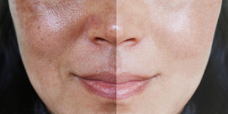 como tirar manchas do rosto ativos metodos caseiros e tratamentos 2 - Cómo eliminar las imperfecciones faciales: activos, métodos y tratamientos caseros