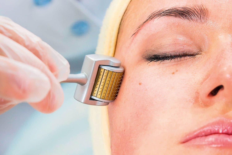como tirar manchas do rosto ativos metodos caseiros e tratamentos 5 - Cómo eliminar las imperfecciones faciales: activos, métodos y tratamientos caseros