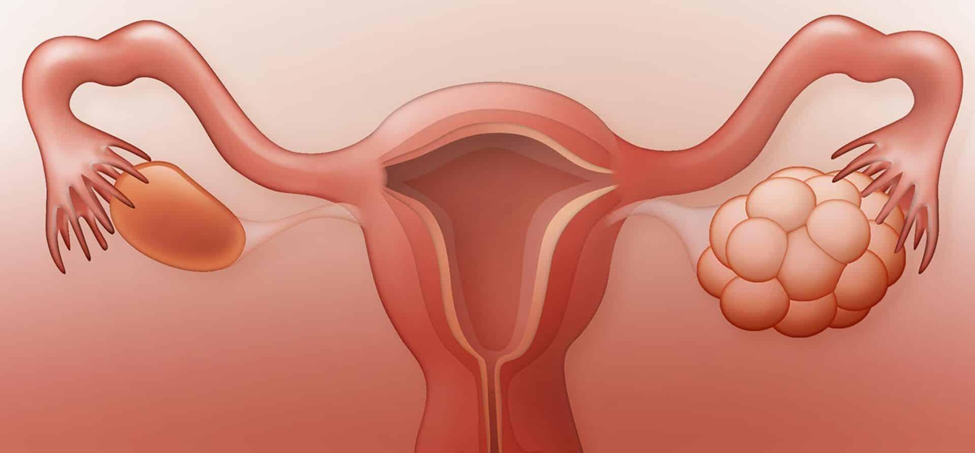 Dor na ovulação, o que é? Sintomas, possíveis causas e tratamento