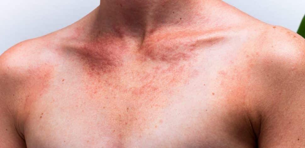 Mancha vermelha na pele – Descubra as causas