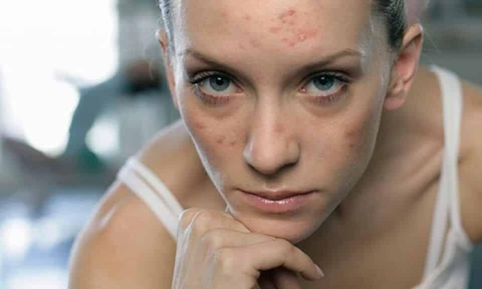 Anticoncepcional para acne – Benefícios e contraindicações