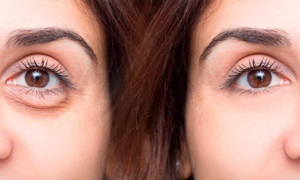 Tratamento caseiro para olheiras – 4 opções para fazer em casa