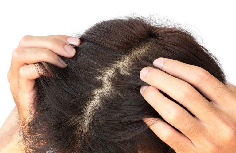 Couro cabeludo – Problemas associados e cuidados necessários